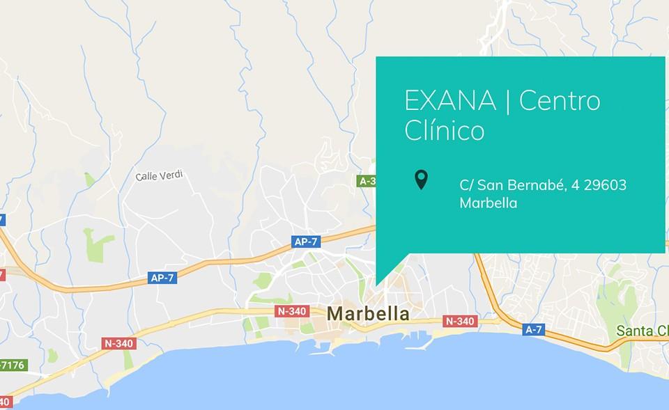 Donde Estamos Exana Marbella